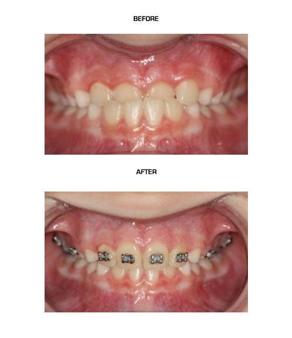 Underbite-(Dental)